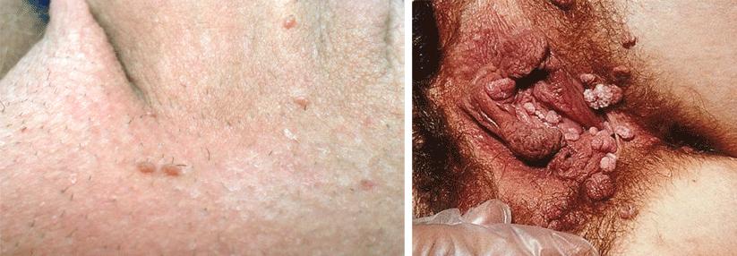 kondylome hpv therapie benign squamous papilloma penile