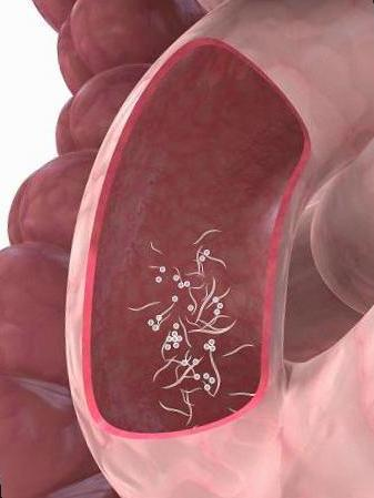 los oxiuros tratamiento casero oxiurus e vermes