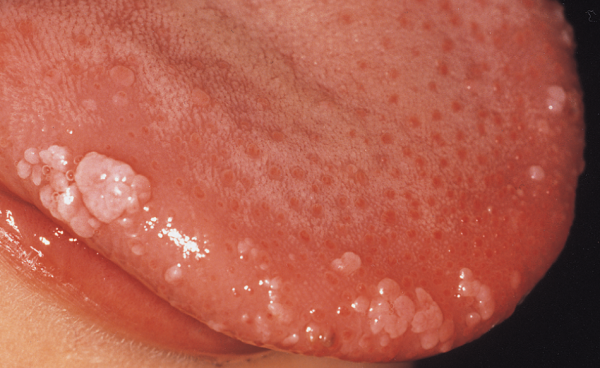 papilloma virus lecenje