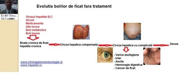 boala hepatică în varicoză