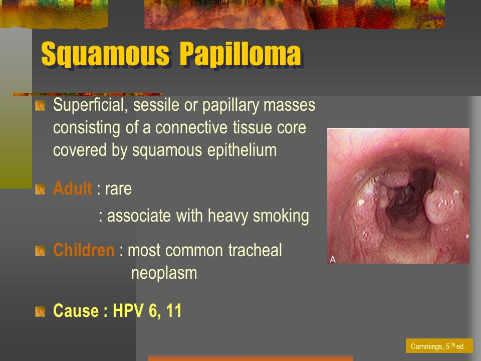 squamous papilloma causes