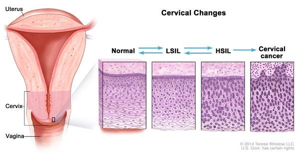 Vestibular papillomatosis leczenie