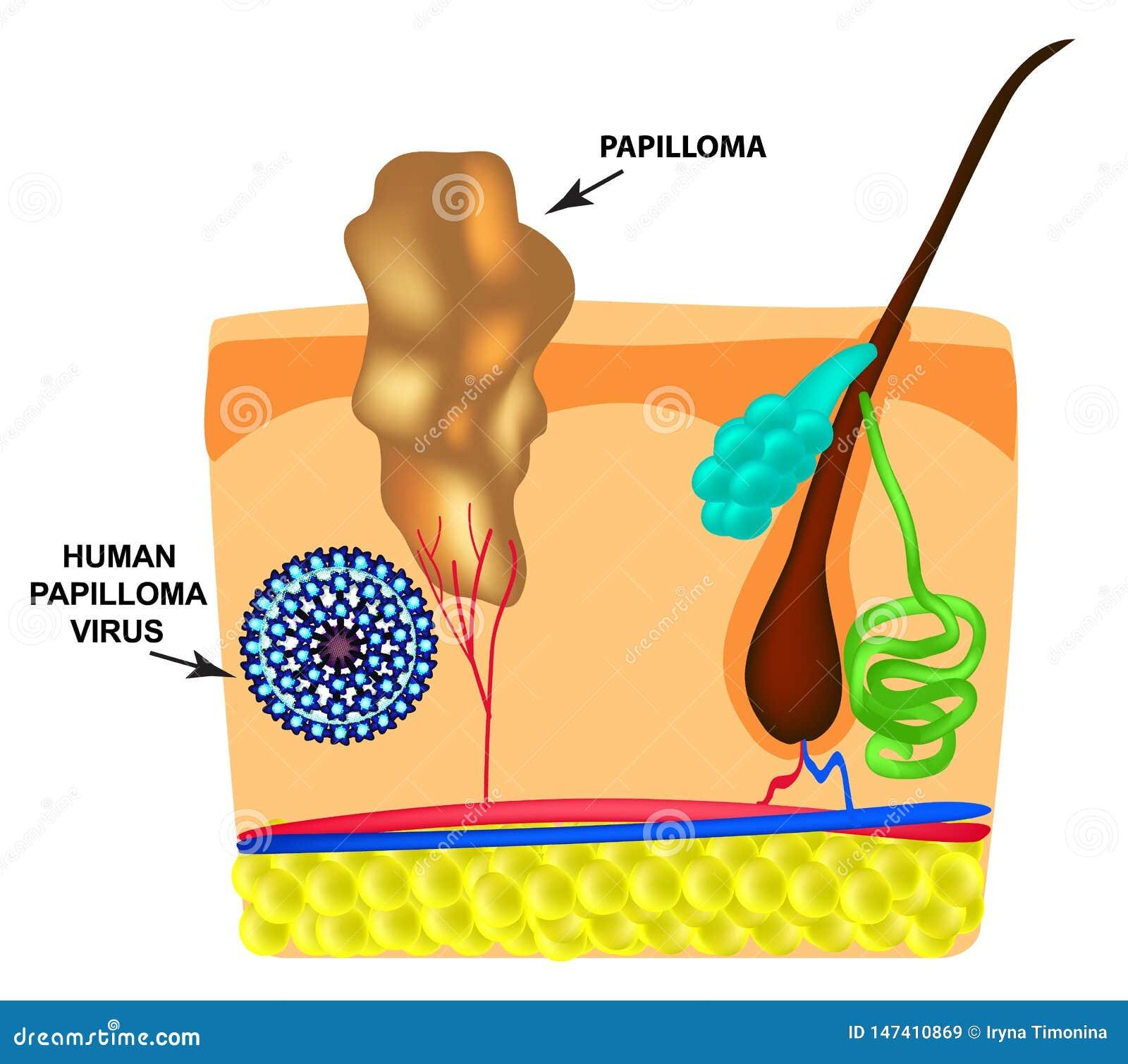 papilloma virus italiano sintomi medicamente pentru tratamentul papiloame