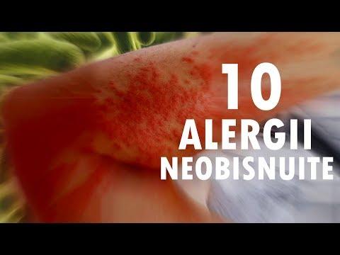 quanto sopravvive il papilloma virus