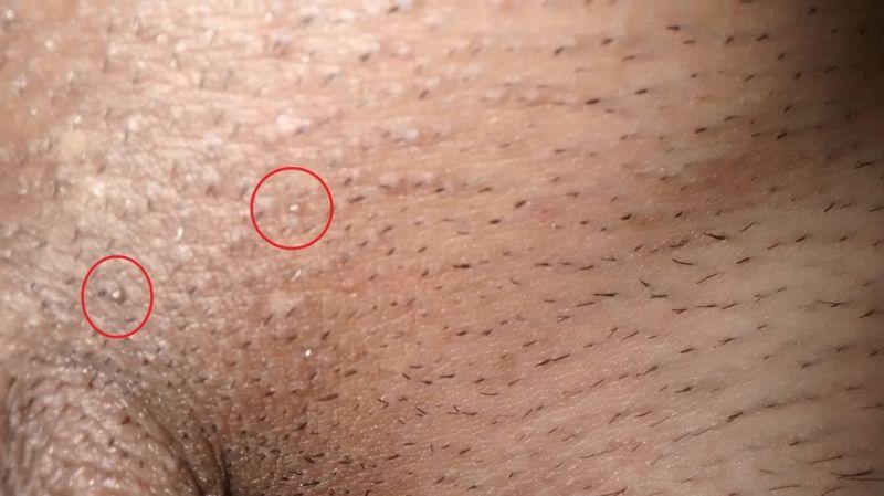 papillomavirus male papillomavirus homme langue