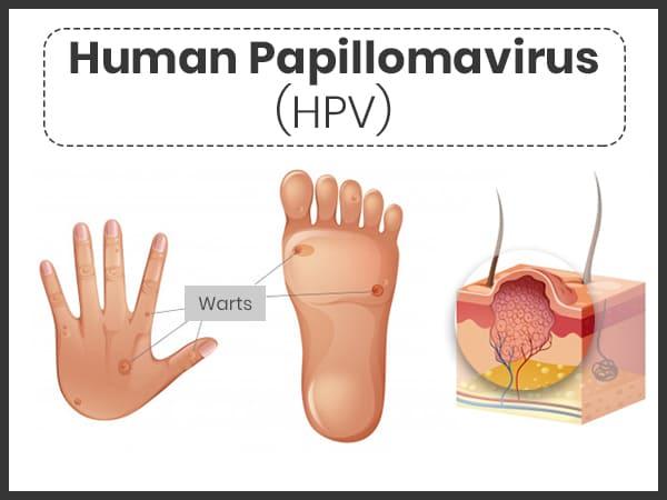 papilloma virus yaitu