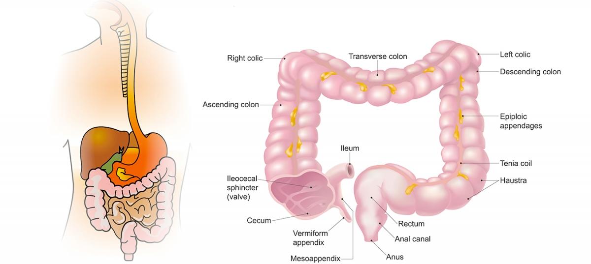 cancerul de colon la copii eliminăm paraziții din medicamentele organismului