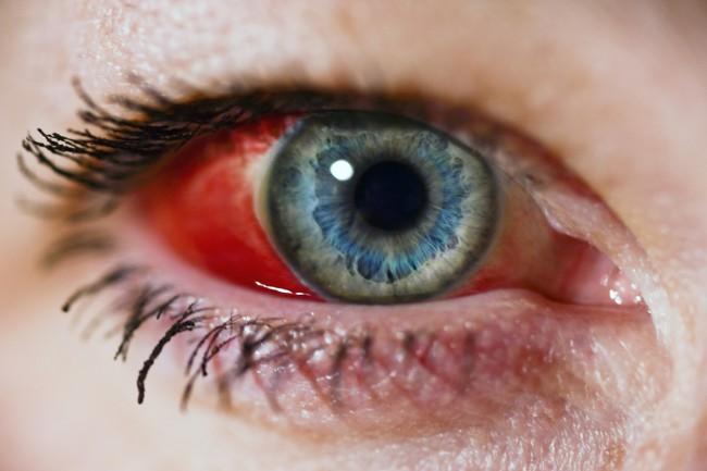 Principalele afectiuni ale ochiului | in2constient.ro