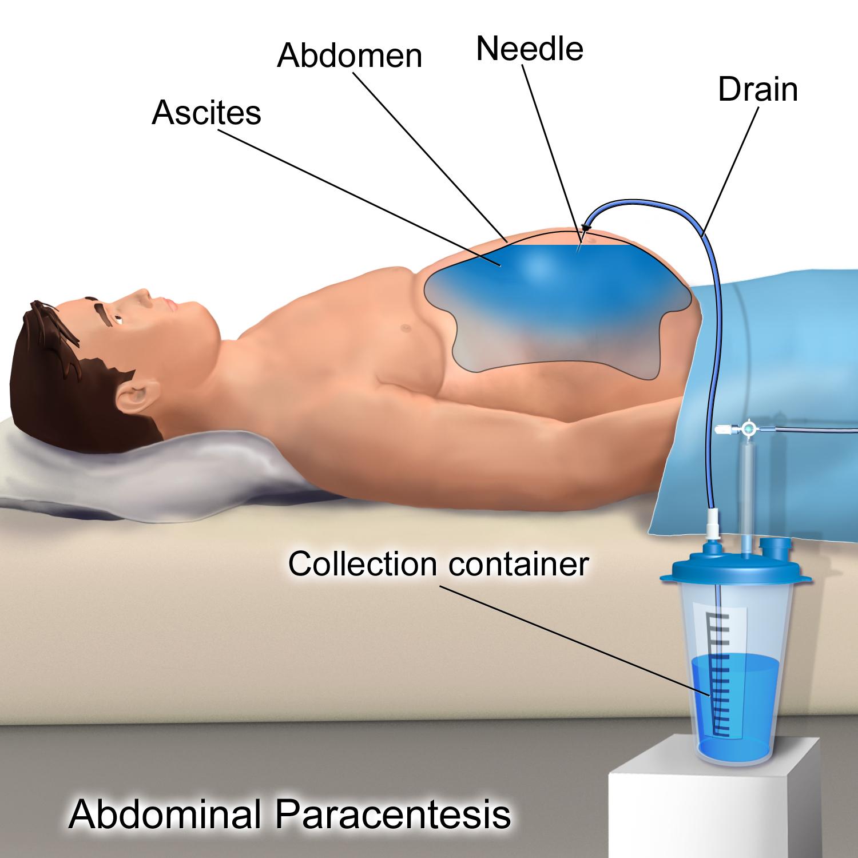 peritoneal cancer icd 10 cancer de piele copii