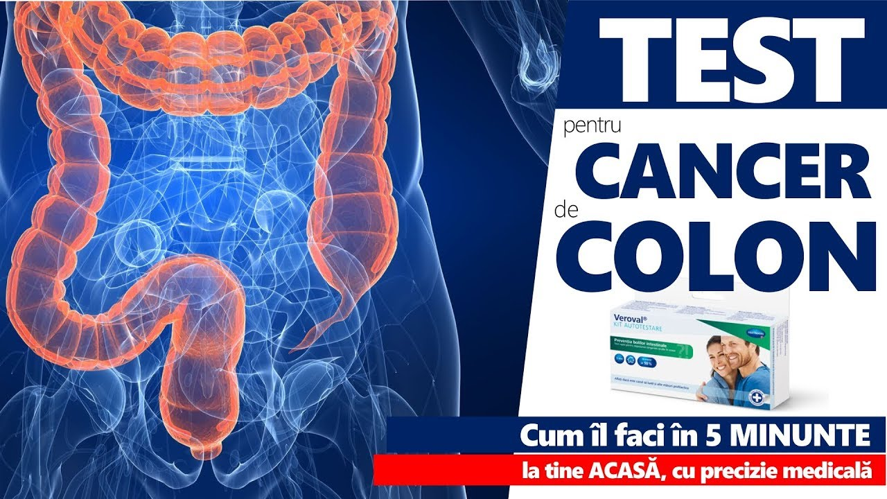 cancerul de colon se ia