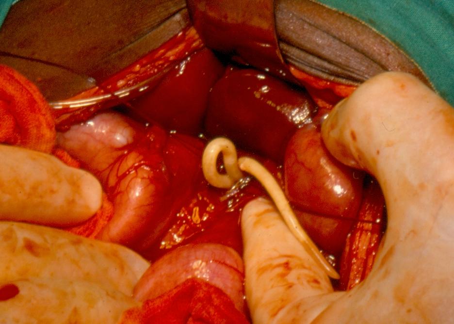 helminth worm define