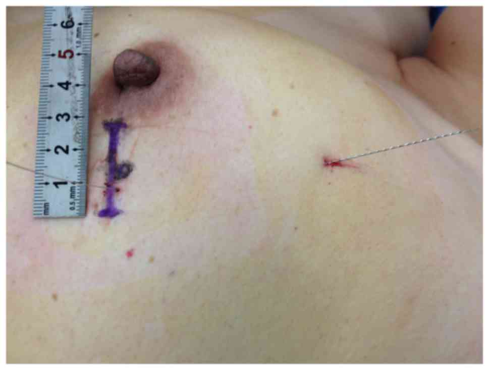 excision of papilloma
