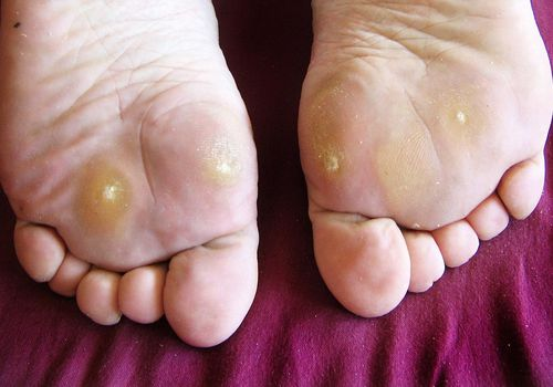 Foot verruca plantar treatment - Cuvinte cheie - Warts on foot left untreated