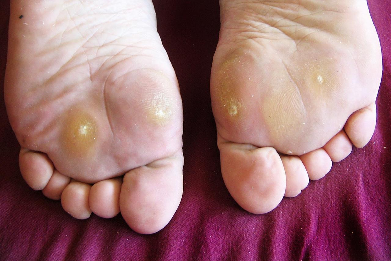 wart on foot split open