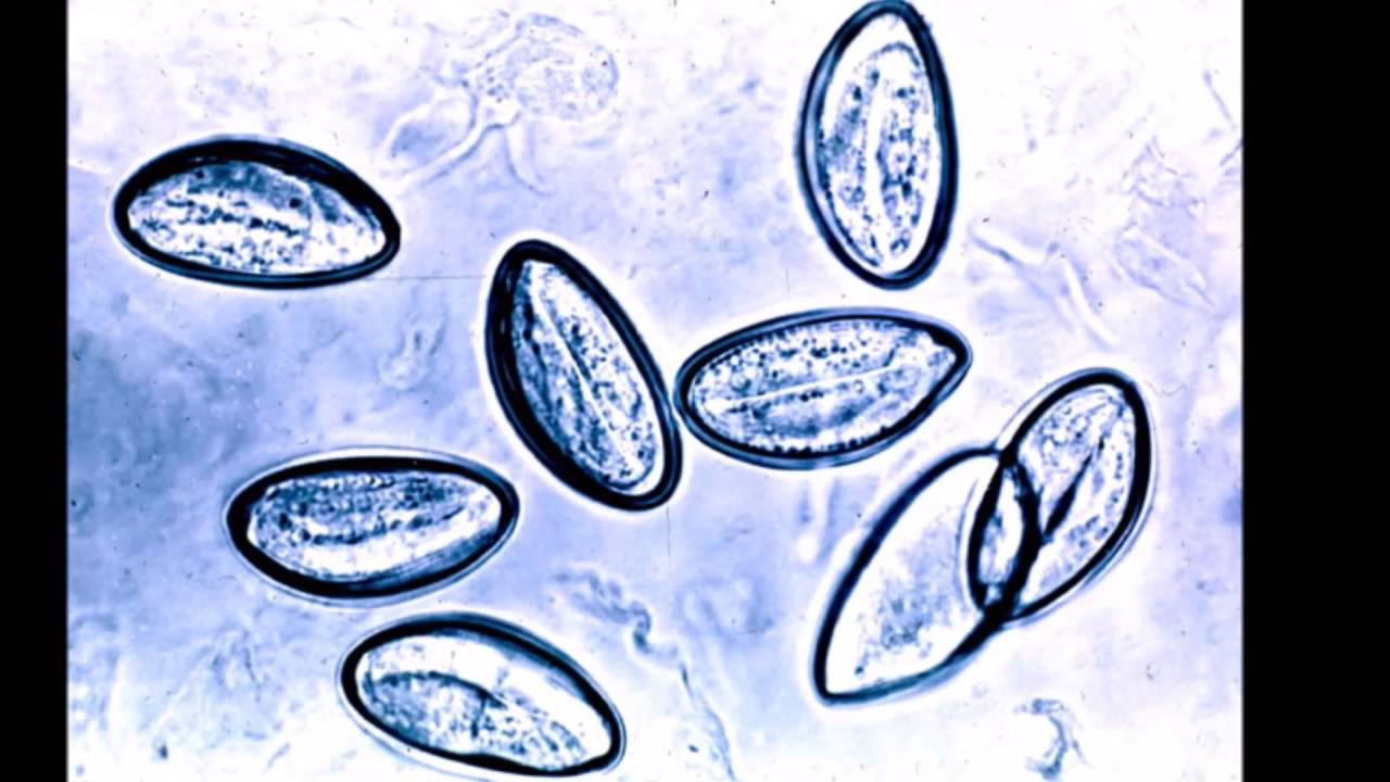 oxiuriasis of enterobiasis respiratia urat mirositoare