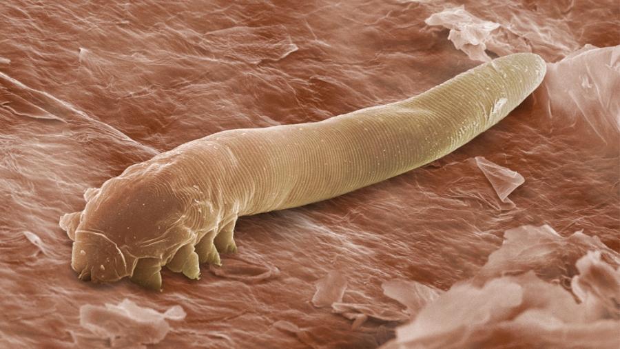parazit u jetri)
