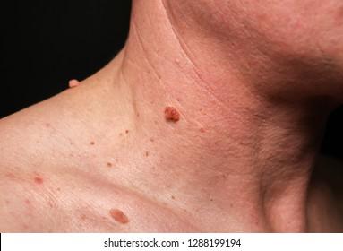 tratament anti papiloma