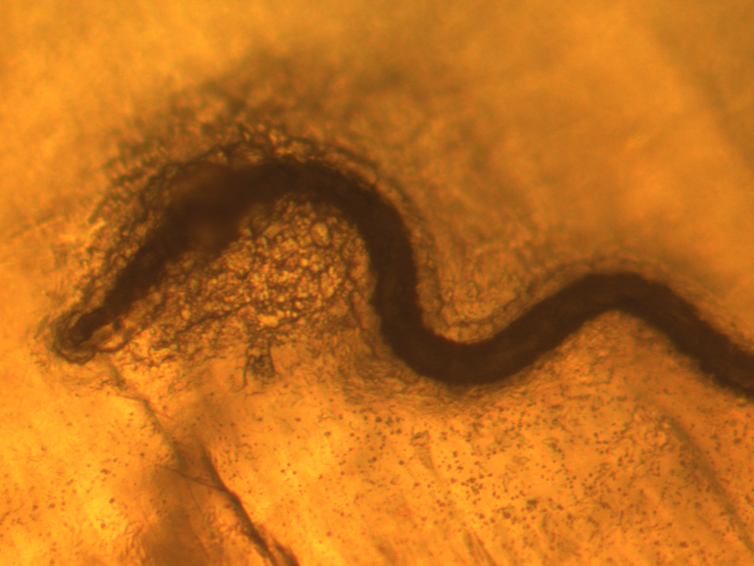 cancer de piele epiteliom cremă pentru îndepărtarea papilomelor de pe gât