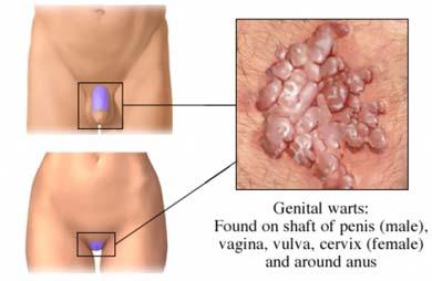 condyloma acuminatum vulva icd 10