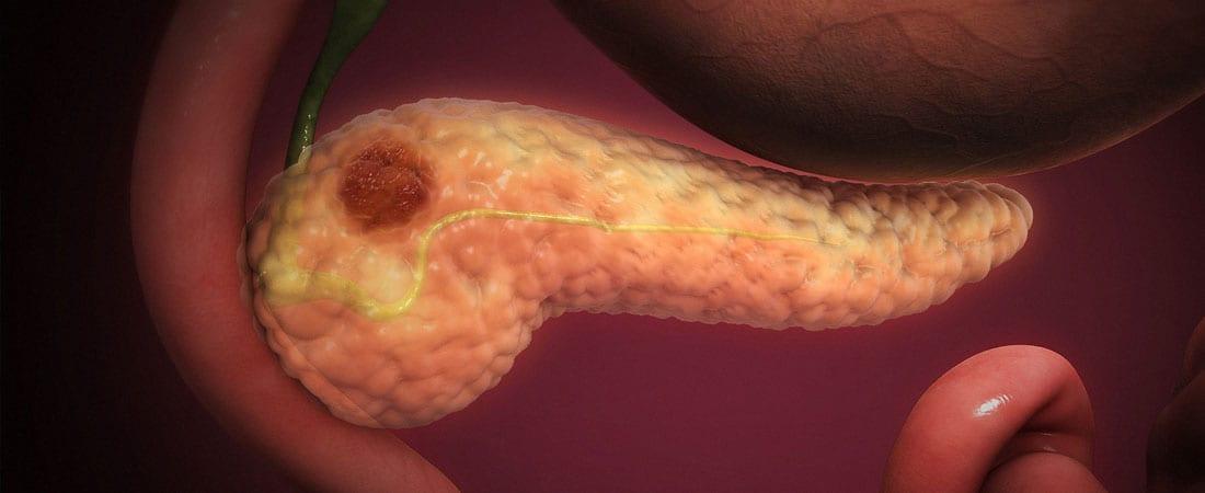 cancerul pancreatic cauze hpv virusu tedavisi erkek