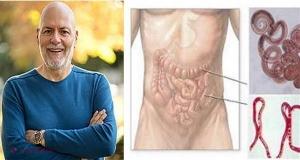 apariția papilomelor cauzele și tratamentul