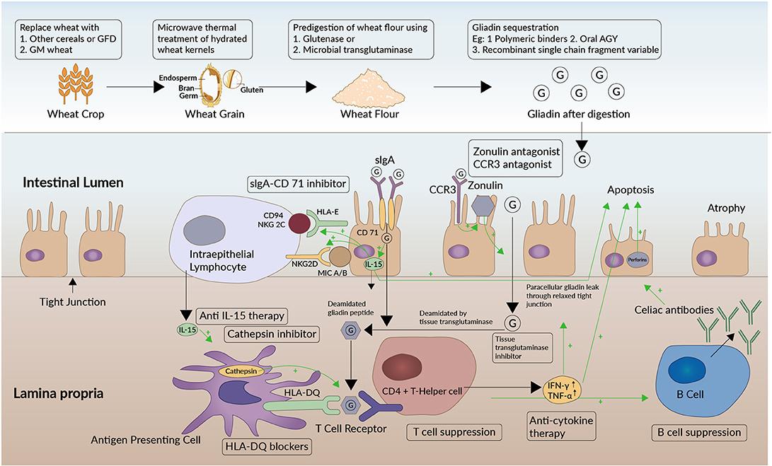 helminth therapy celiac