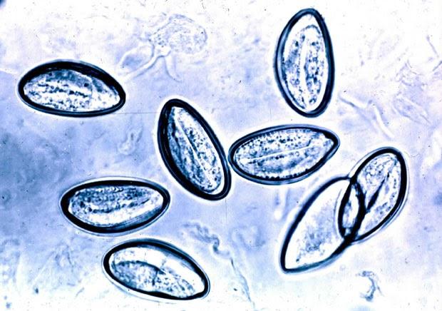 oxiuriasis of enterobiasis papilloma virus vaccini