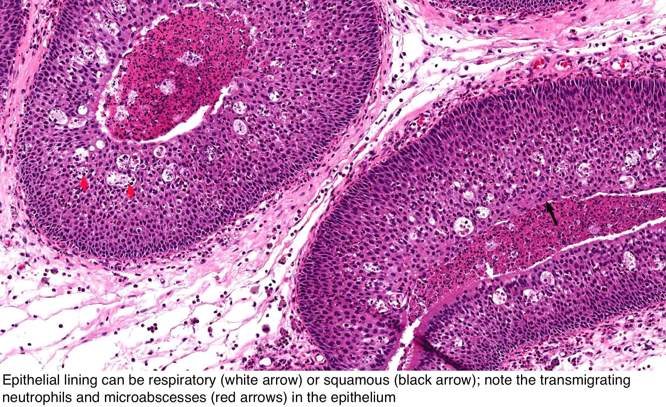 sinonasal papilloma histopathology