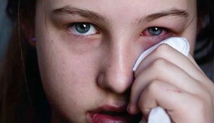 Papillomavirus yeux. Papillomavirus oeil