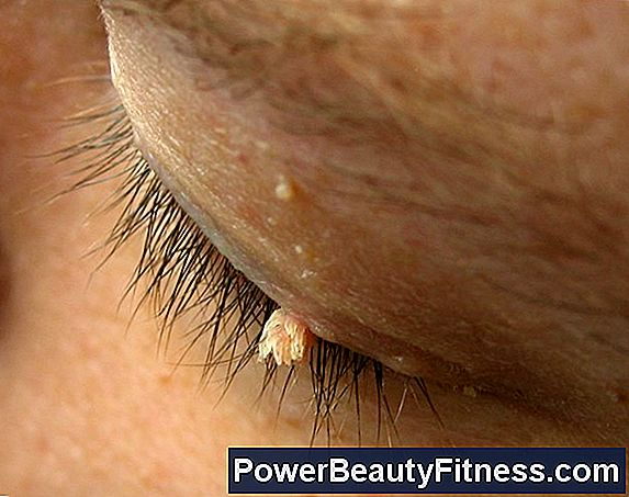 papilloma virus della pelle