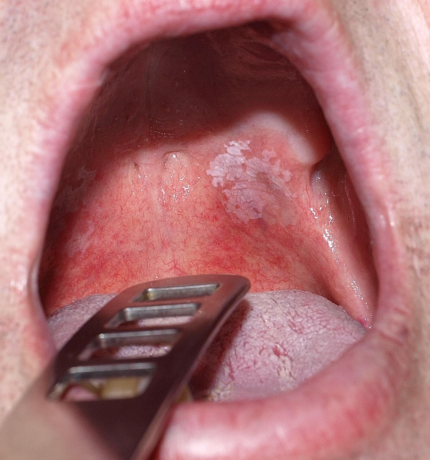 unguent pentru papiloame de secole virus del papiloma uretral