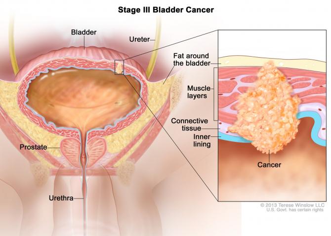 cancer vezica urinara stadiul 4 colorectal cancer in the news