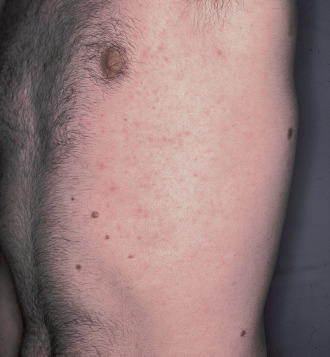guerison du papillomavirus