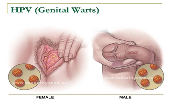 hpv genital warts and cancer deschidere parazită