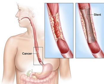 Cancerul esofagian – Spitalul Universitar de Urgenţă Militar Central Dr. Carol Davila