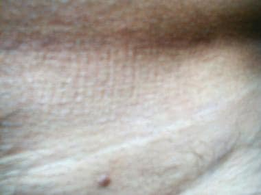 condiloame pe transvers detoxifierea corpului colonului