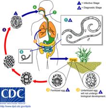 detoxifierea organismului de primavara condilom dacă nu este tratat