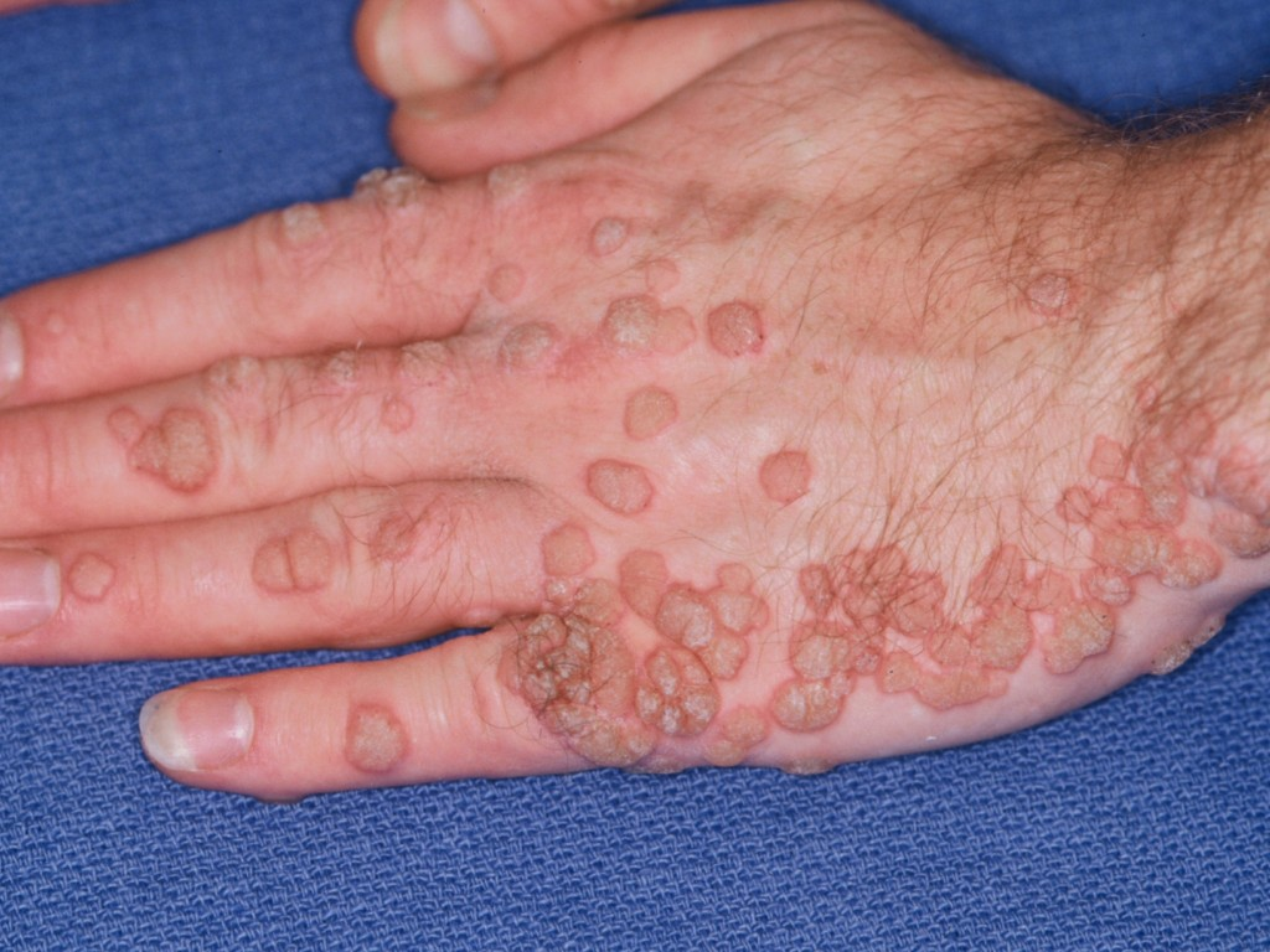 Papillomatosis dermatology. ChSkin (1) - Papillomatosis in skin tags