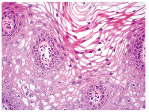 Eliminați papilomas podolsk. Este posibil să se vindece complet HPV?