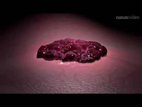 cum se tratează condiloamele din gură controlul enterobiozei după tratament