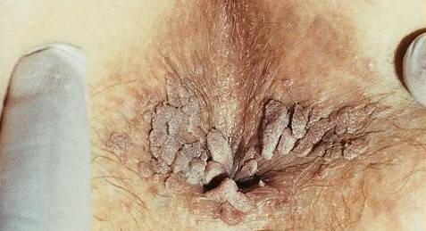 negi genitale din ceea ce provine