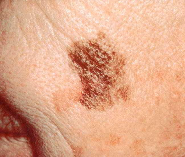 cancer de piele denumiri)