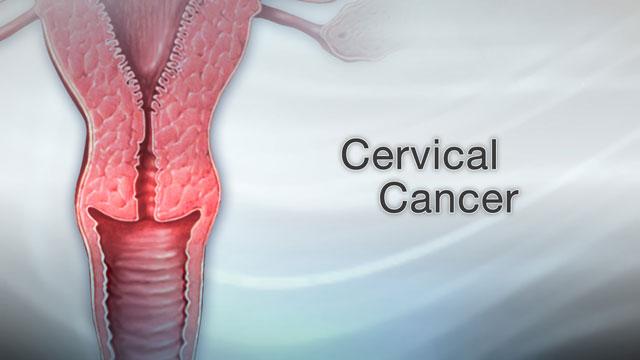 Hpv wart thigh. Sarcoma cancer thigh