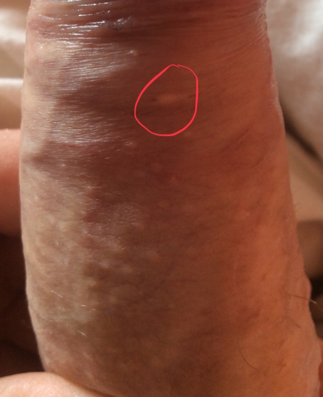 Genital wart papilloma, Genital hpv symptoms female Hpv warts female