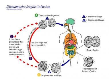 enterobius vermicularis treatment medscape papilom în ureche cauze și tratament