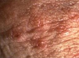 pentru vindecarea rănilor după negi genitale