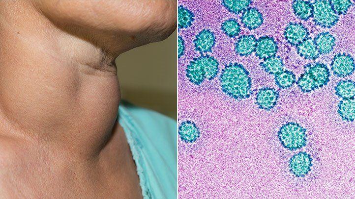 hpv throat cancer destroy diseases condilom wartner