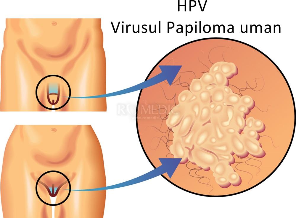 Virusul HPV - Transmitere, simptome, diagnostic și tratament