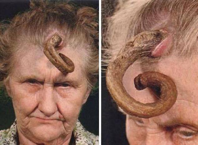 curăță corpul de viermi și corpul