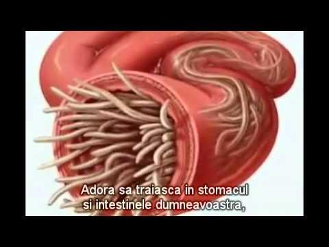 viermii intestinali giardia